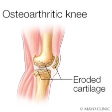 medical illustration of osteoarthritis