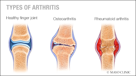 a medical illustration of a healthy finger joint, one with osteoarthritis and one with rheumatoid arthritis