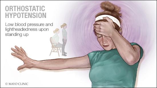 Ilustración médica de la hipotensión ortostática