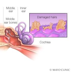 medical illustration of damaged hearing