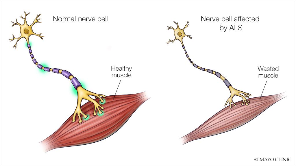 ALS medical illustration