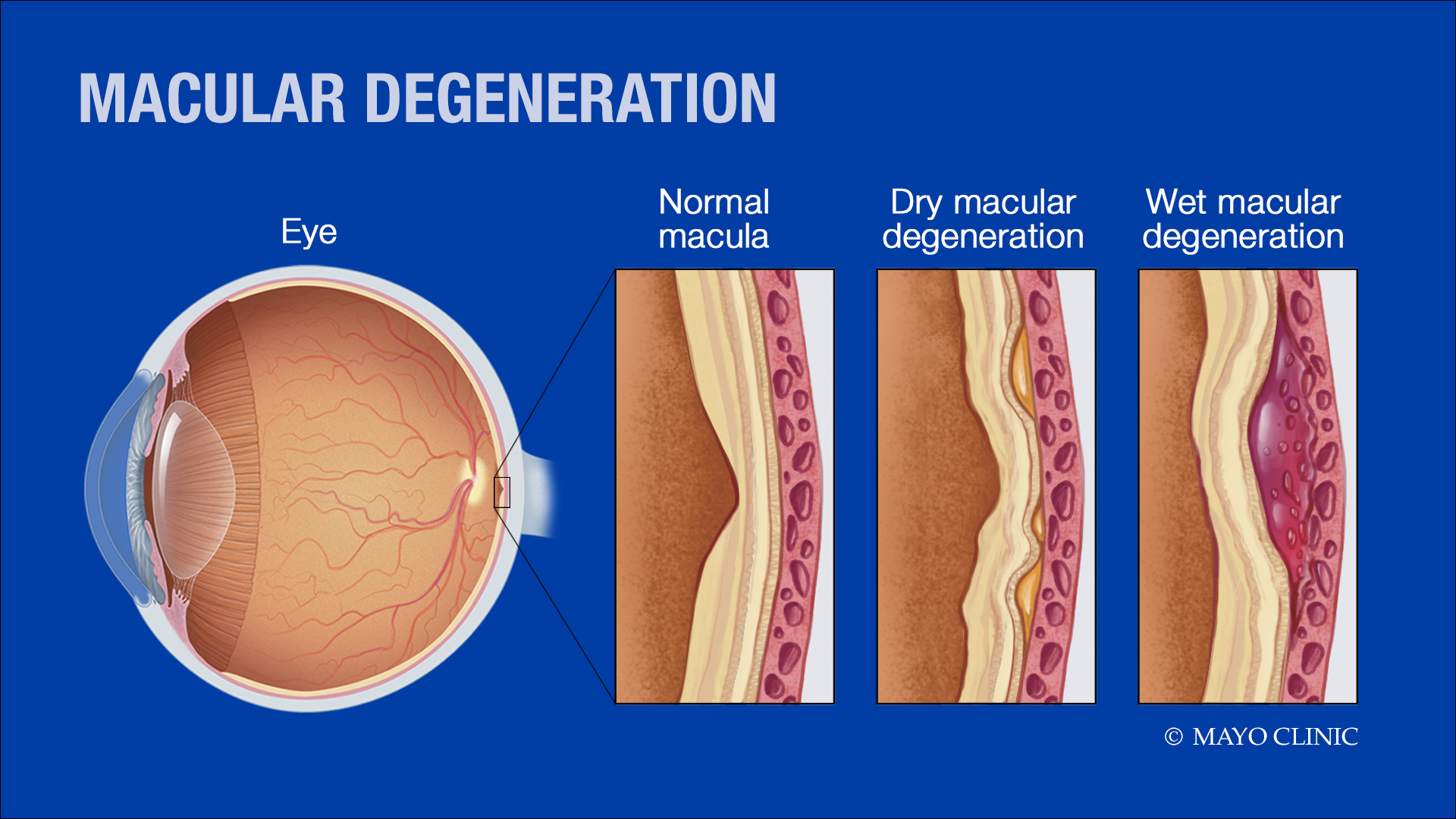 medical illustration - macular degeneration