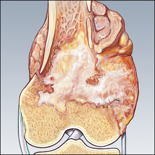 medical illustration of osteosarcoma tumor