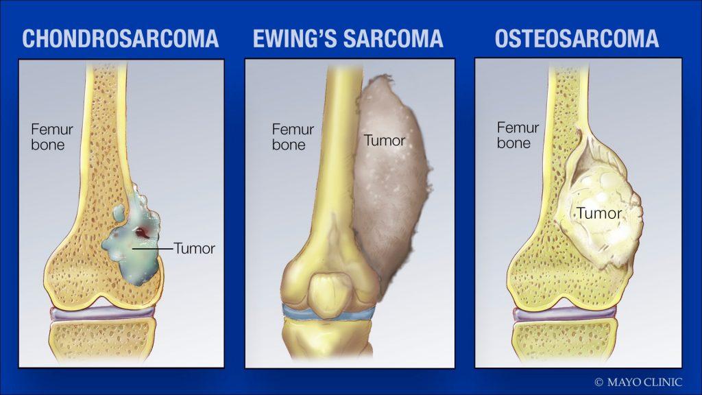 medical illustrations of sarcoma tumors