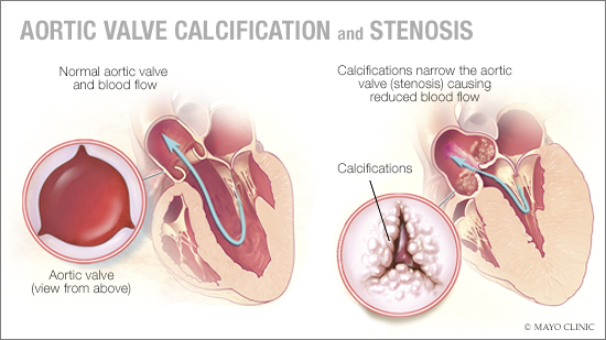 a medical illustration of aortic valve calcification and stenosis
