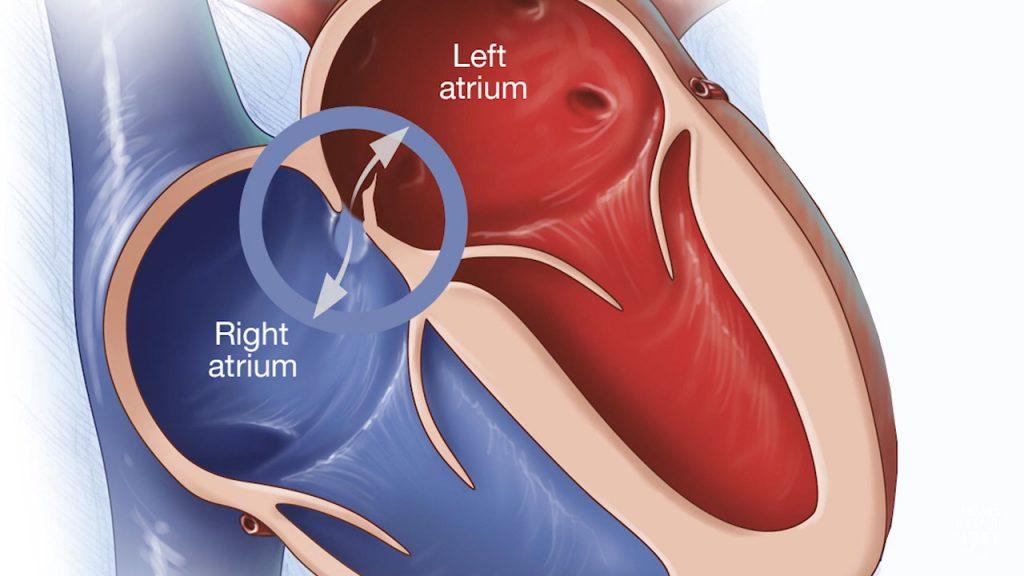 Ilustración médica del foramen oval permeable
