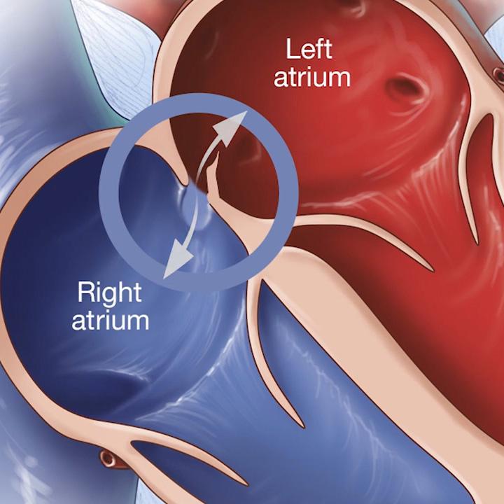 a medical illustration of patent foramen ovale