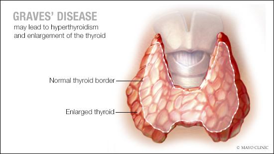 Ilustración médica de la enfermedad de Graves