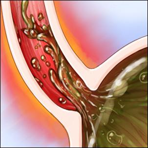a medical illustration of Barrett's esophagus