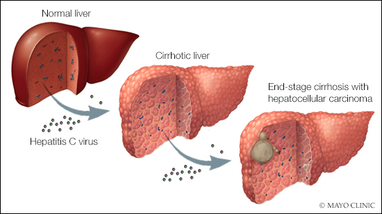 a medical illustration of a normal liver, a cirrhotic liver, and one with end-stage cirrhosis and hepatocellular carcinoma