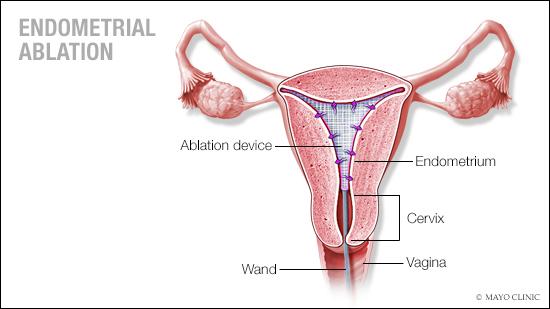 a medical illustration of endometrial ablation