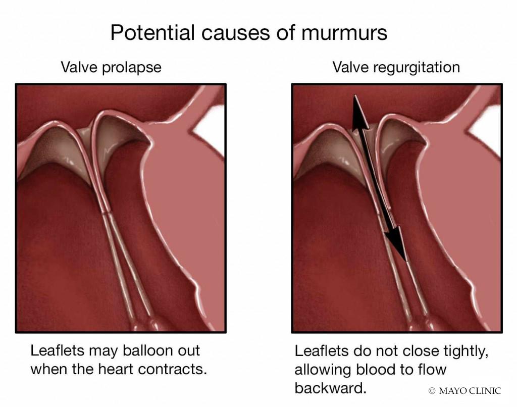 medical illustration for potential causes of murmurs with valve prolapse or valve regurgitation