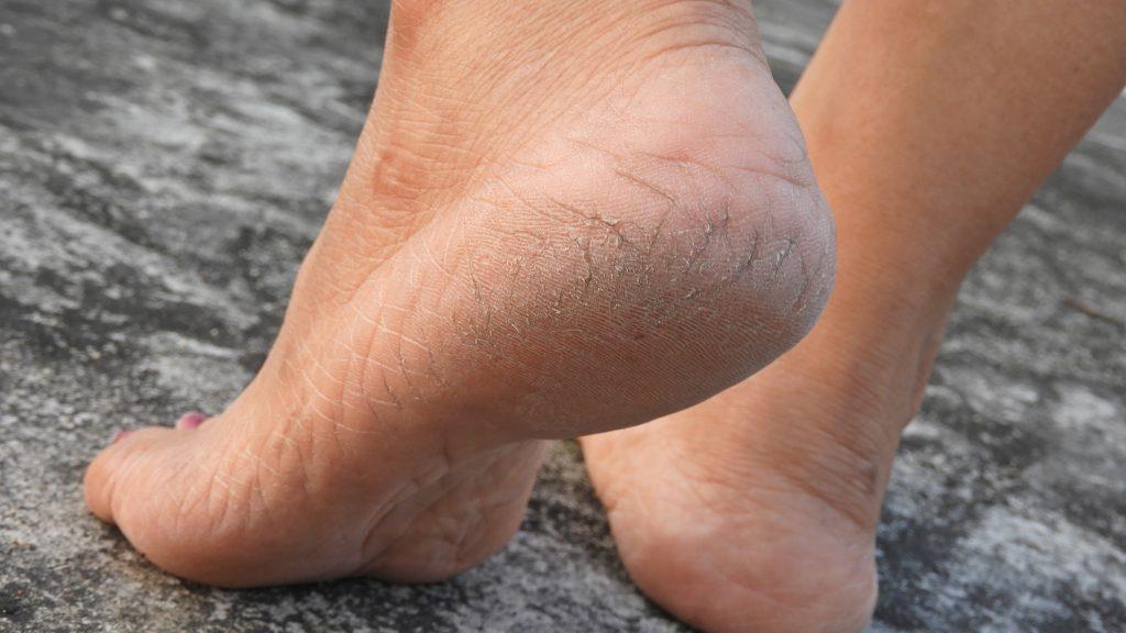 Talones agrietados en unos pies femeninos