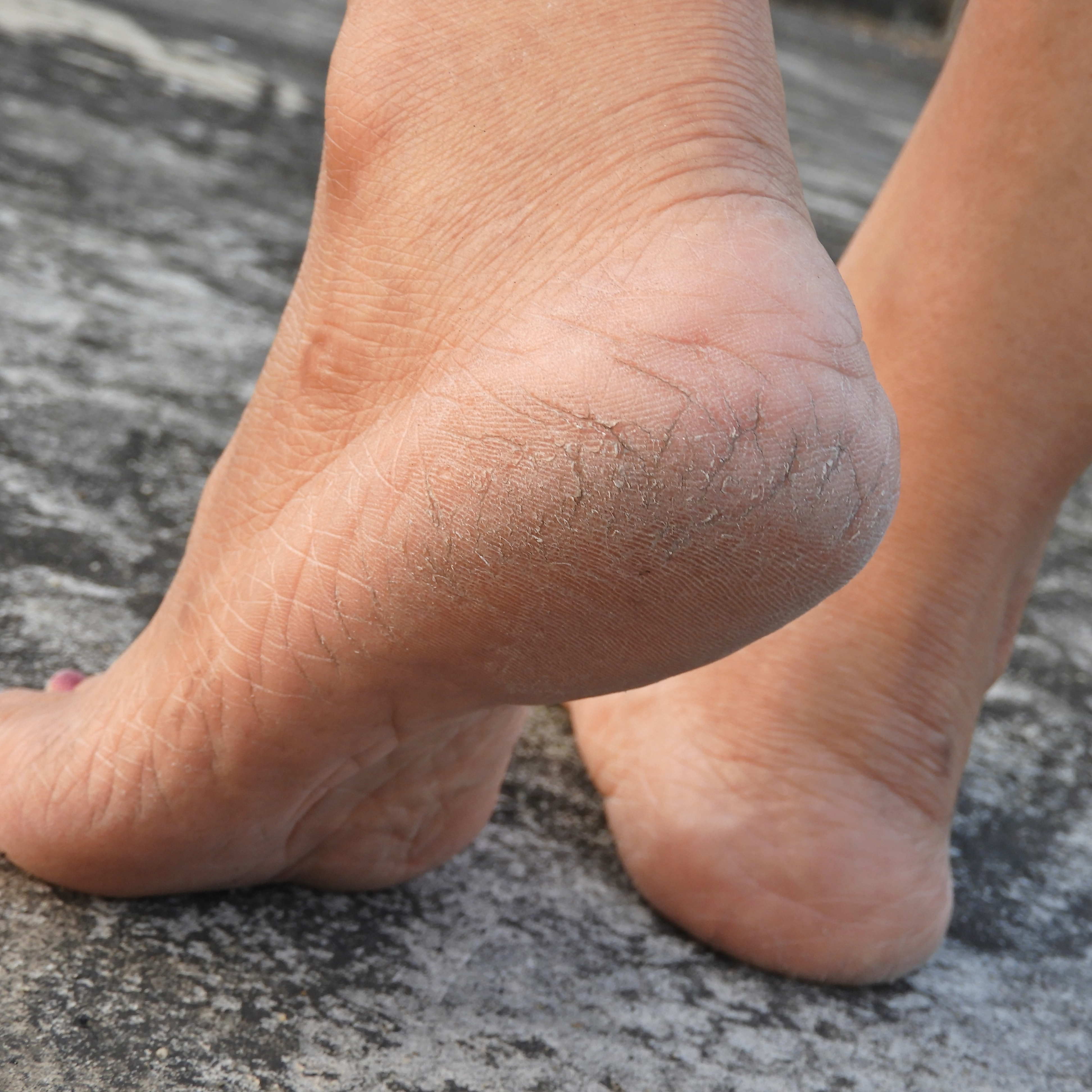 Cracked-heels-on-a-woman's-foot