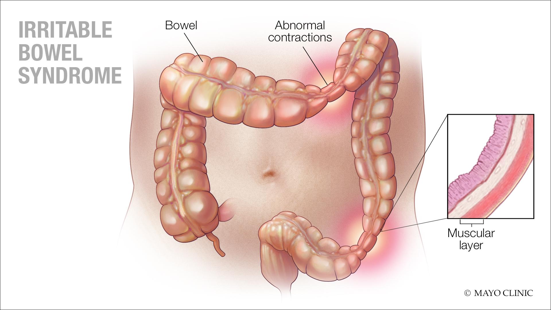 Medical illustration of irritable bowel syndrome (IBS)