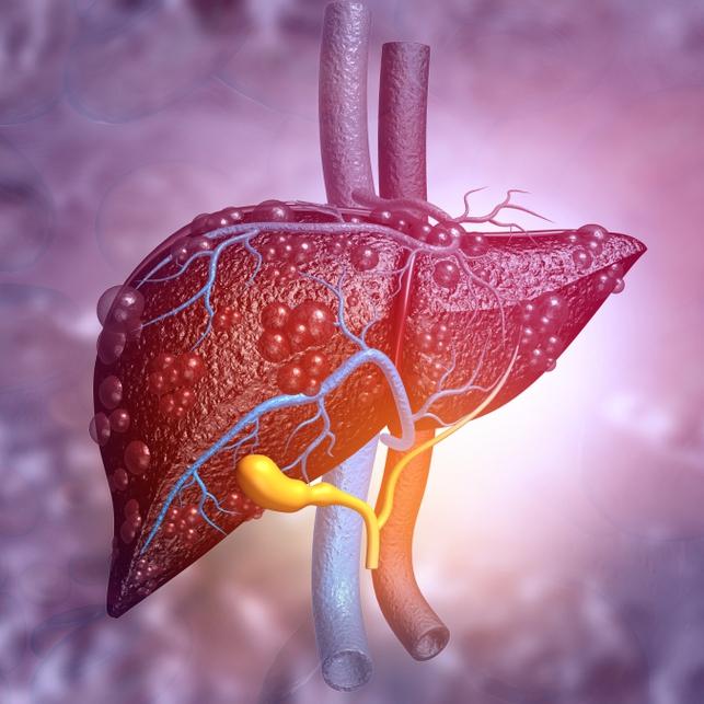 illustration of diseased liver