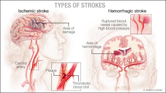 medical illustration of stroke types