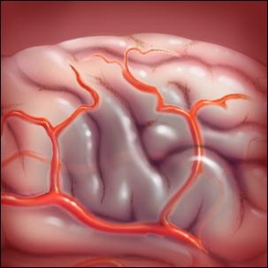 medical illustration of stroke