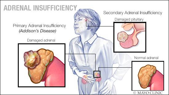 a medical illustration of adrenal insuffiency