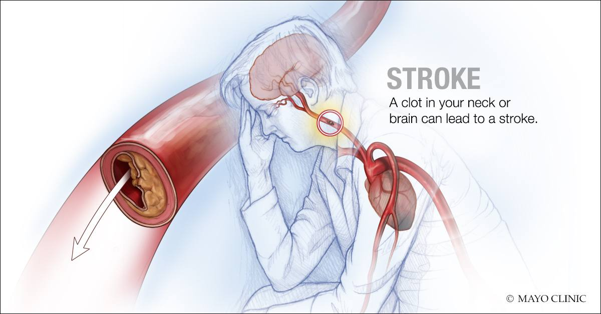 illustration of a stroke