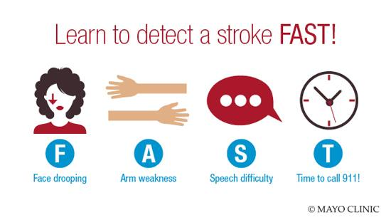 FAST acronym for detecting a stroke