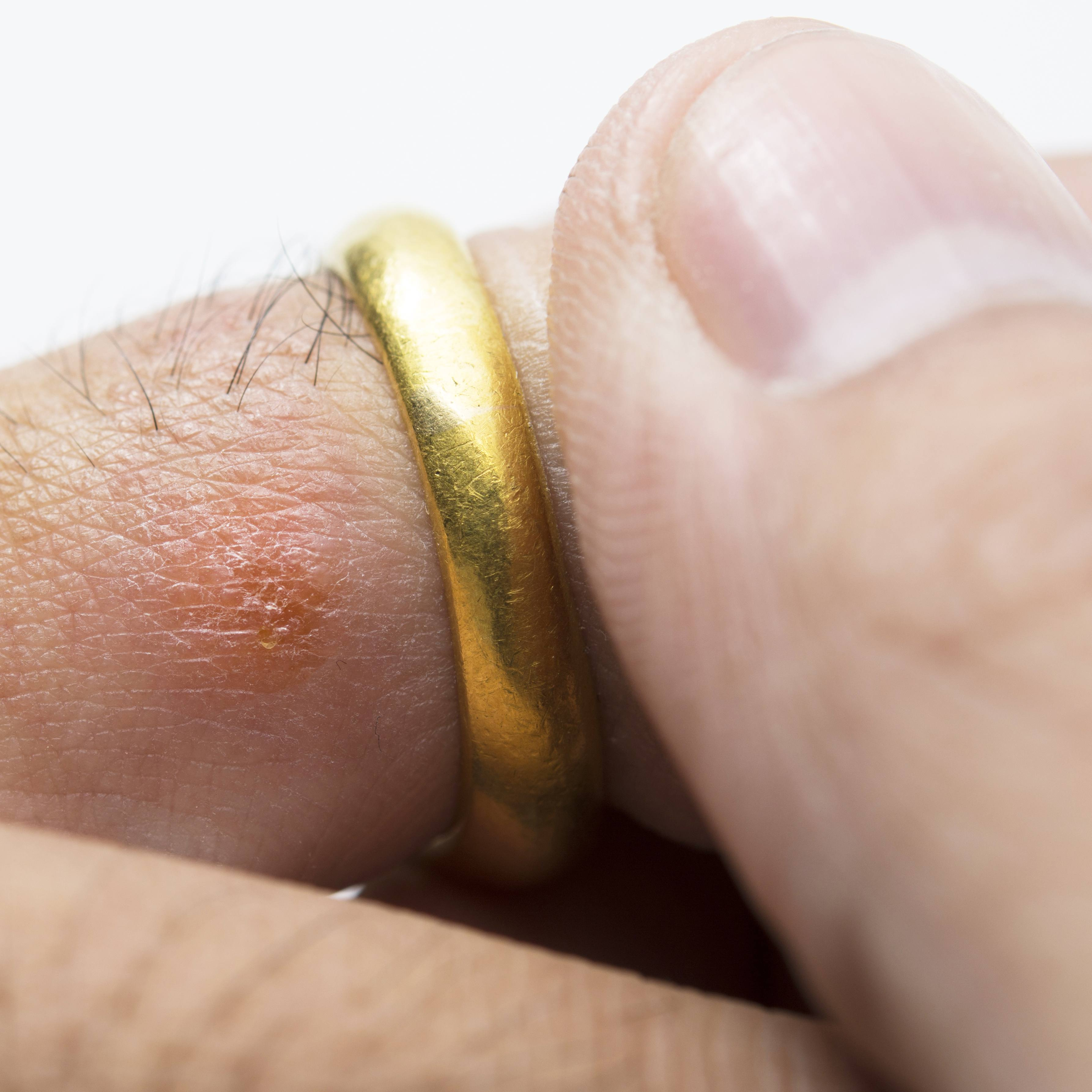 close up of a ring on a person's finger, showing a red skin rash