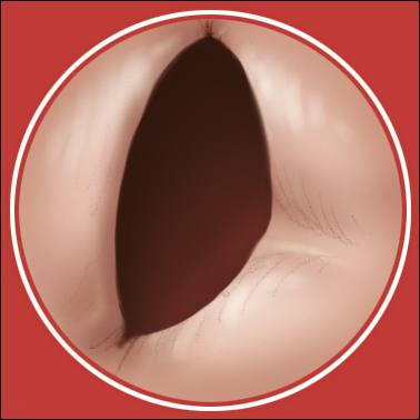 a medical illustration of a bicuspid aortic valve, which is a congenital defect