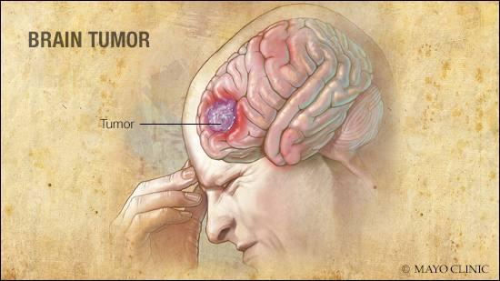a medical illustration of a brain tumor