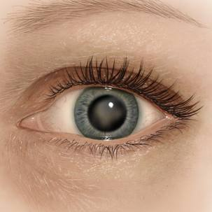 a medical illustration of an eye with a cataract