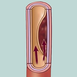 a medical illustration of carotid artery dissection (tear)
