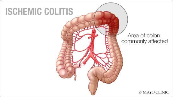 a medical illustration of ischemic colitis