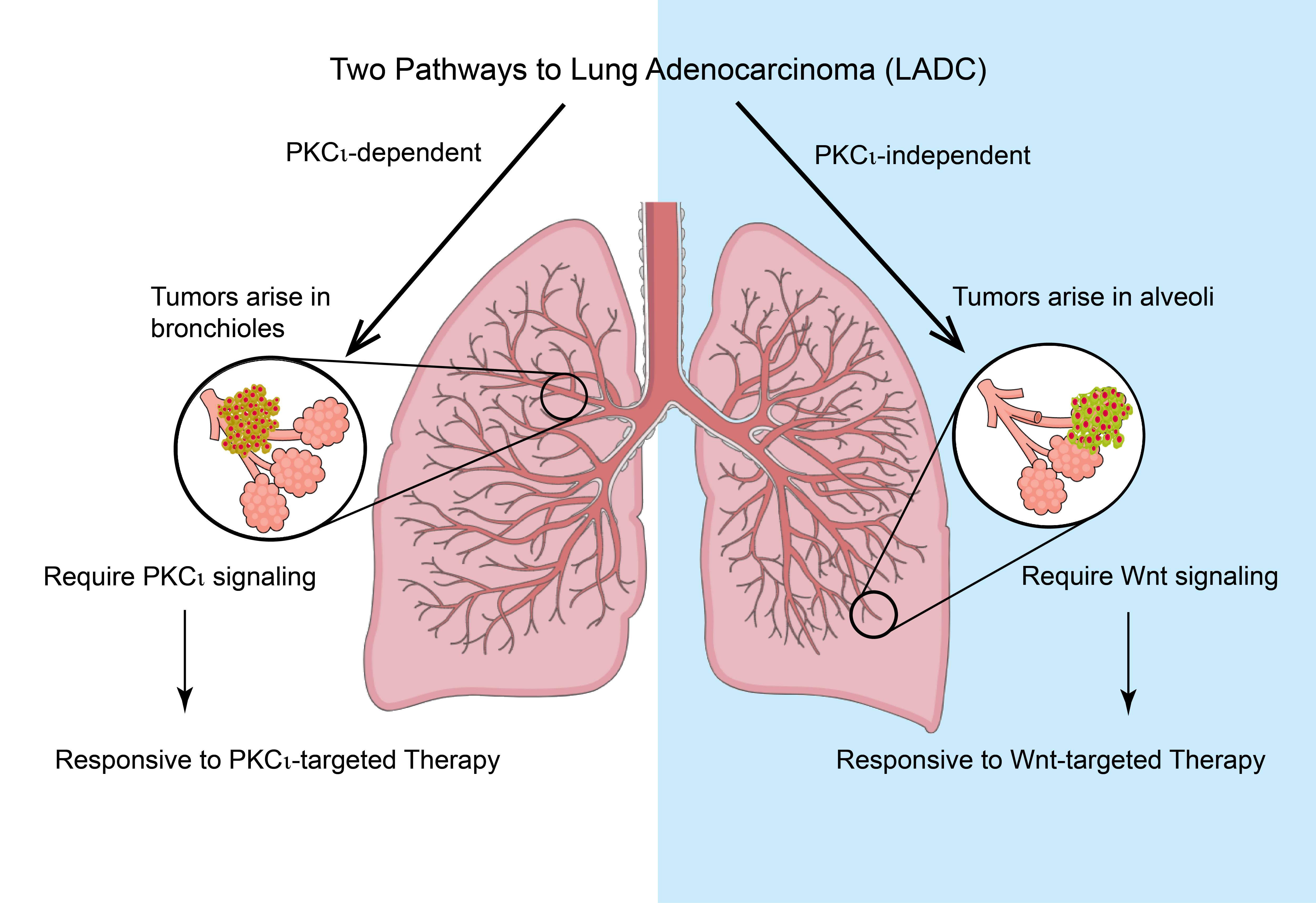 diagram of two pathways to lung adenocarcinoma