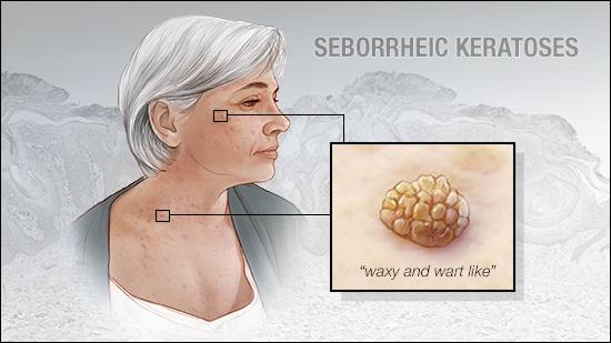 a medical illustration of seborrheic keratoses