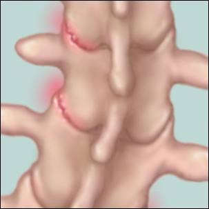 medical illustration of a spice with scoliosis