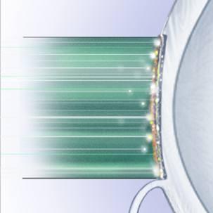 a medical illustration of LASIK surgery