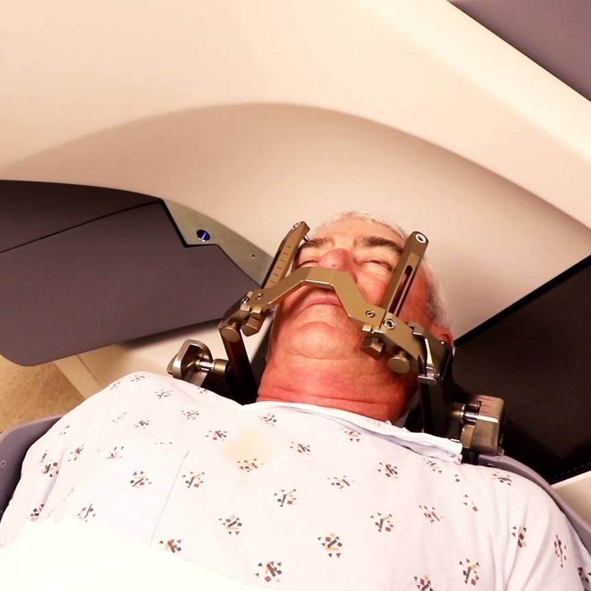 a male patient in a hospital gown lying down on a procedure table with his head in a brace during gamma knife stereotactic radiosurgery