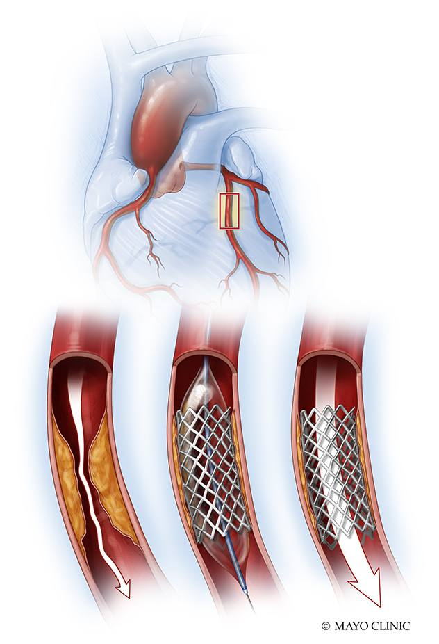 medical illustration of a coronary_artery_stent