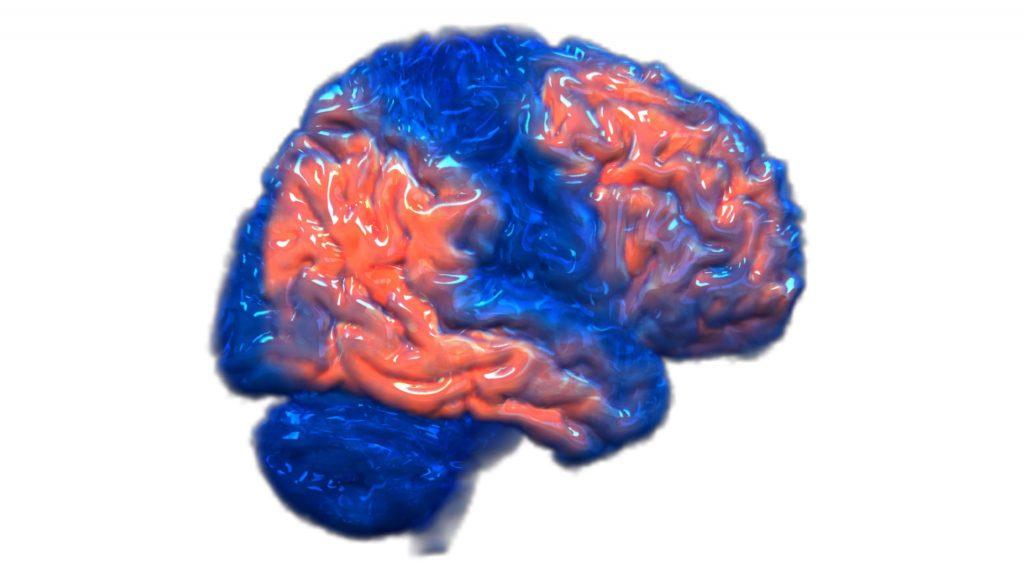 Imagen gráfica en 3D de un cerebro con colores azul y naranja que representan partes del cerebro afectadas por la enfermedad de Alzheimer