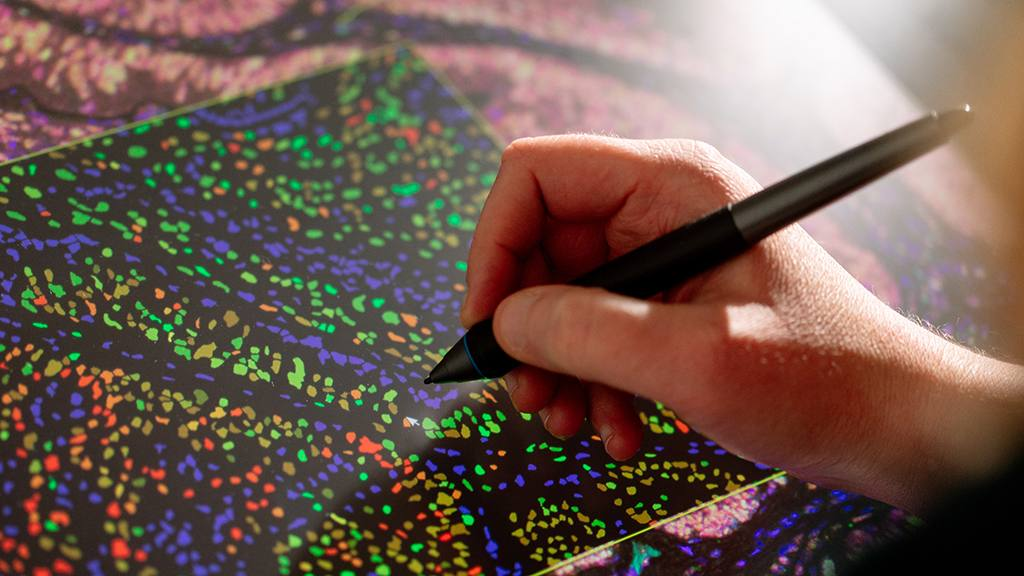 closeup of a person holding a marking pen on a pathology slide, looking at data