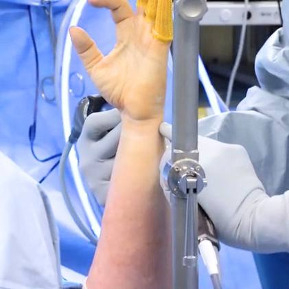 a white person's arm and hand help up with a metal brace during carpal tunnel surgery, surrounded by surgeons in blue scrub gowns
