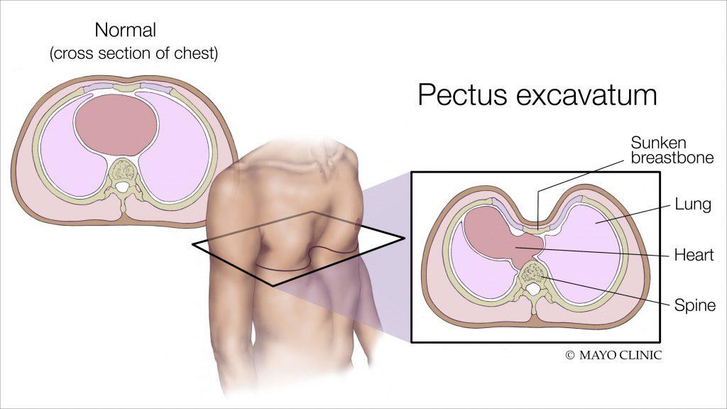 a medical illustration of pectus excavatum