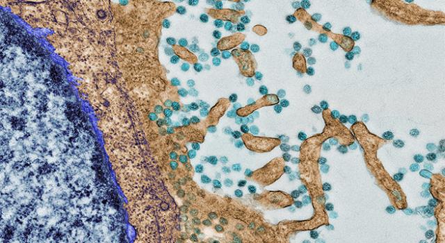 SARS-CoV-2 (puntos verde azulados) en la superficie de una célula Vero cultivada (el núcleo está abajo, a la izquierda). La imagen es cortesía del Centro de Microscopia y Análisis Celular de Mayo Clinic