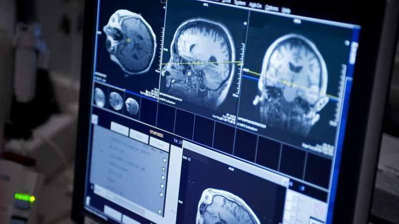 Monitor de computadora de imagen cerebral del paciente con epilepsia