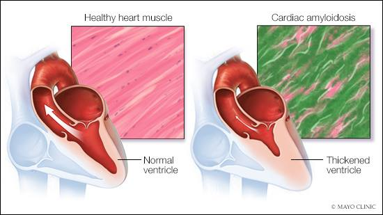 medical illustration of healthy heart muscle and a second heart with cardiac amyloidosis