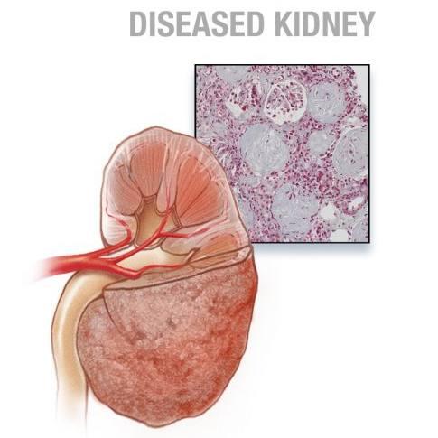 medical illustration of diseased kidney