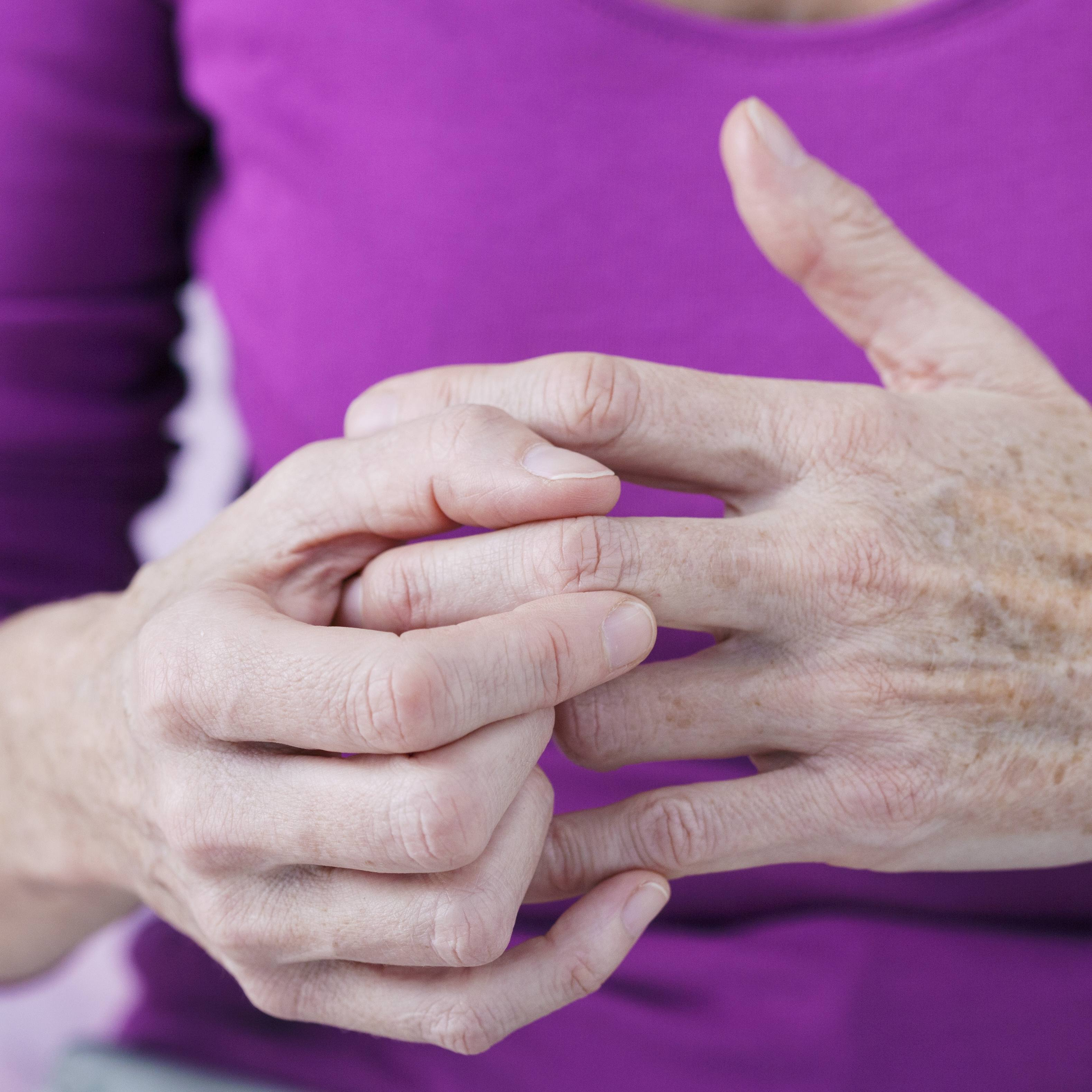 close up of a middle aged white woman's hands as she rubs her fingers and joints that look painful with arthritis