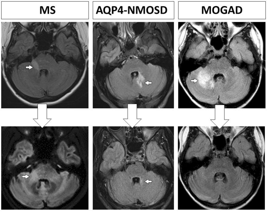 Brain MRIs show white spots, or lesions, occurring during an attack of MS, AQP4-NMOSD and MOGAD