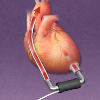 medical illustration/animation of a VAD ventricular assist device for the heart