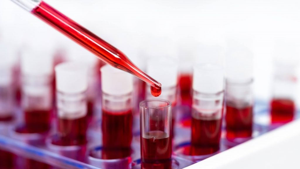 blood research with samples in several laboratory tubes
