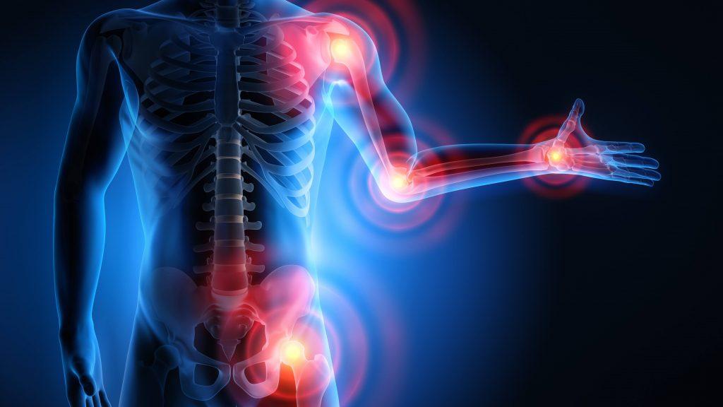 Ilustración de un cuerpo con artritis reumatoide